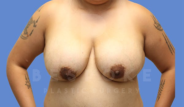 Breast Lift With Implants Gallery - Patient 4757613 - Image 1