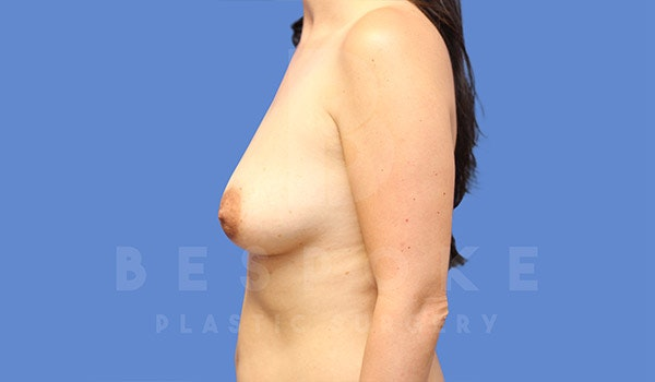 Breast Lift With Implants Gallery - Patient 4757612 - Image 5