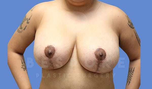 Breast Lift With Implants Gallery - Patient 4757613 - Image 2