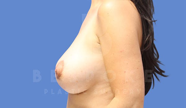 Breast Lift With Implants Gallery - Patient 4757612 - Image 6