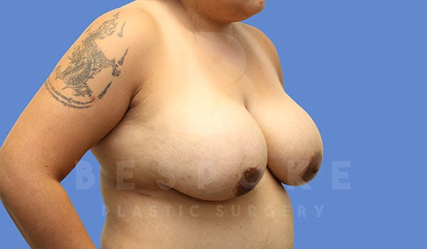 Breast Lift With Implants Gallery - Patient 4757613 - Image 3