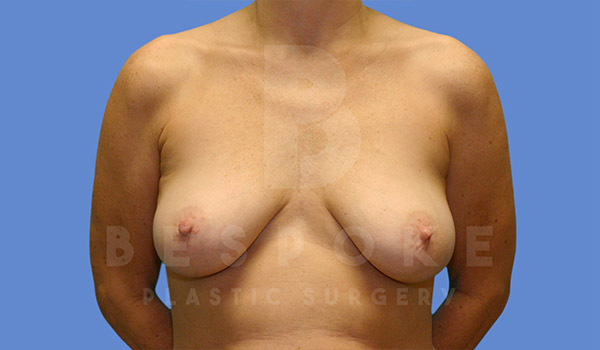 Breast Lift With Implants Gallery - Patient 4757614 - Image 5