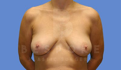 Breast Lift With Implants Gallery - Patient 4757614 - Image 1
