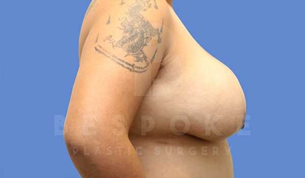 Breast Lift With Implants Gallery - Patient 4757613 - Image 5