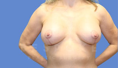 Breast Lift With Implants Gallery - Patient 4757614 - Image 2