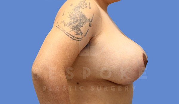 Breast Lift With Implants Gallery - Patient 4757613 - Image 6