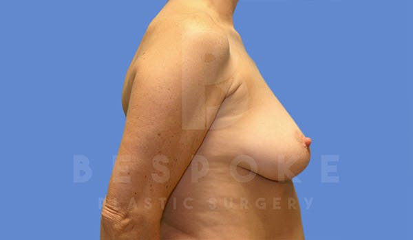 Breast Lift With Implants Gallery - Patient 4757614 - Image 3