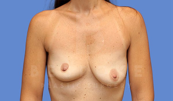 Breast Lift With Implants Gallery - Patient 4757615 - Image 1