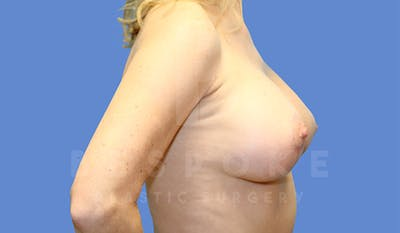 Breast Lift With Implants Gallery - Patient 4757614 - Image 4