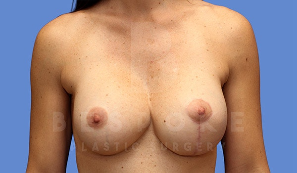 Breast Lift With Implants Gallery - Patient 4757615 - Image 2