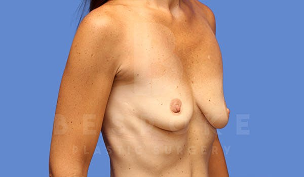 Breast Lift With Implants Gallery - Patient 4757615 - Image 3