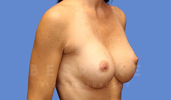 Breast Lift With Implants Gallery - Patient 4757615 - Image 4