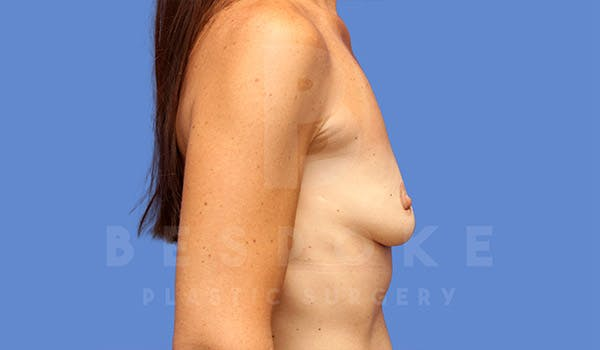 Breast Lift With Implants Gallery - Patient 4757615 - Image 5