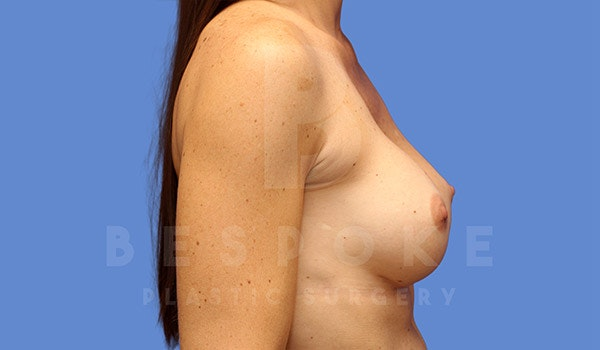 Breast Lift With Implants Gallery - Patient 4757615 - Image 6