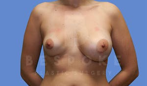 Charlotte NC Breast Revision Results