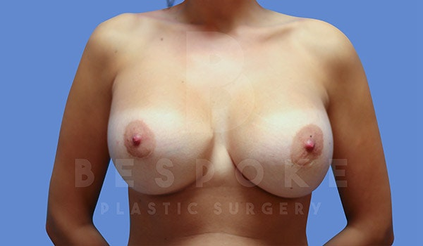 Breast Revision Surgery Gallery - Patient 4757626 - Image 2