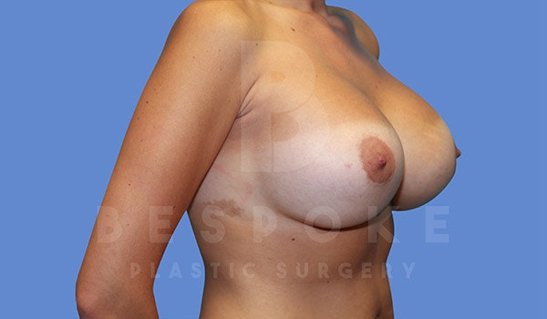 Breast Revision Surgery Gallery - Patient 4757626 - Image 4