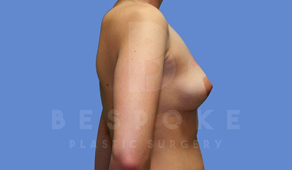 Breast Revision Surgery Gallery - Patient 4757626 - Image 5