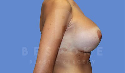 Breast Revision Surgery Gallery - Patient 4757626 - Image 6