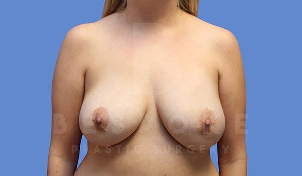 Breast Revision Surgery Gallery - Patient 4757627 - Image 1
