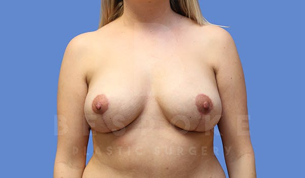 Breast Revision Surgery Gallery - Patient 4757627 - Image 2