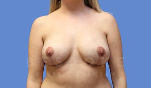Charlotte NC Breast Lift Results with Dr. Pratt