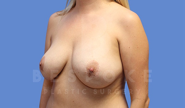 Breast Revision Surgery Gallery - Patient 4757627 - Image 3