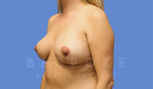 Breast Revision Surgery Gallery - Patient 4757627 - Image 4