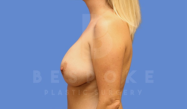 Breast Lift Gallery - Patient 4842404 - Image 5