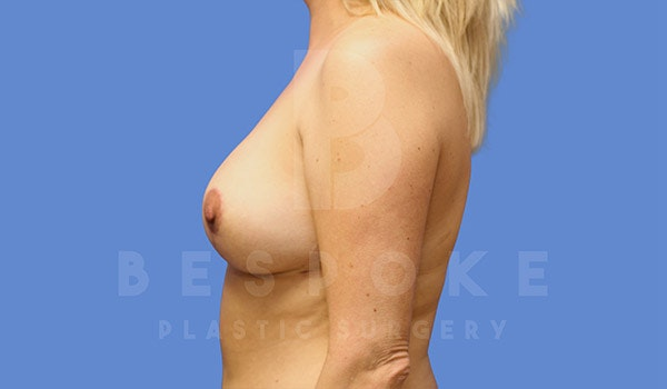 Breast Revision Surgery Gallery - Patient 4757627 - Image 6