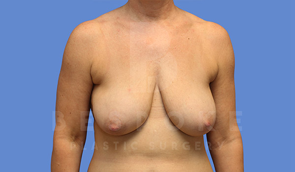 Breast Lift Gallery - Patient 4757638 - Image 1
