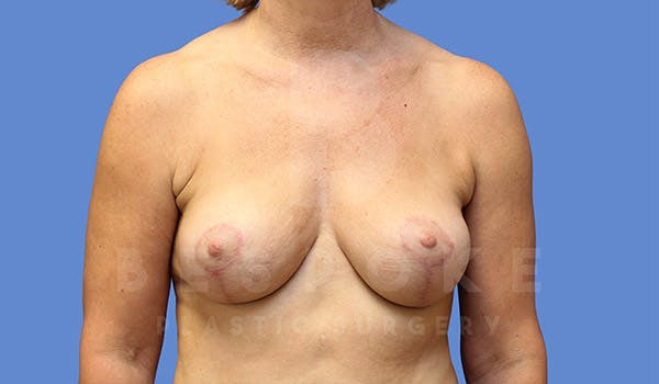 Breast Lift Gallery - Patient 4757638 - Image 2