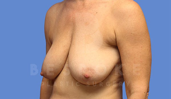 Breast Lift Gallery - Patient 4757638 - Image 3