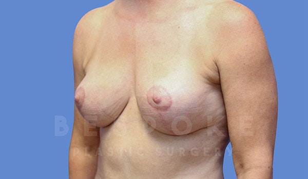 Breast Lift Gallery - Patient 4757638 - Image 4