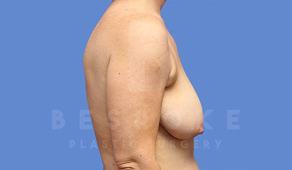 Breast Lift Gallery - Patient 4757638 - Image 5