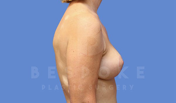 Breast Lift Gallery - Patient 4757638 - Image 6