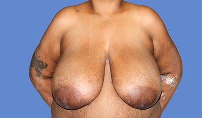 Breast Reduction Gallery - Patient 4757643 - Image 1
