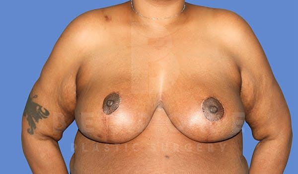 Breast Reduction Gallery - Patient 4757643 - Image 2