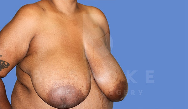Breast Reduction Gallery - Patient 4757643 - Image 3