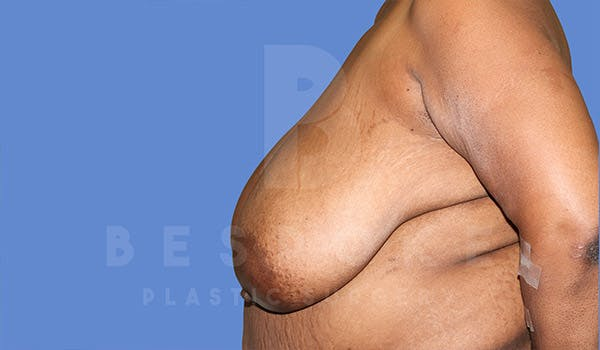 Breast Reduction Gallery - Patient 4757643 - Image 5