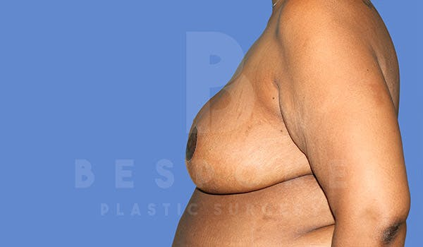 Breast Reduction Gallery - Patient 4757643 - Image 6