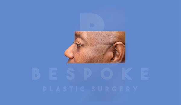 Eyelid Surgery Gallery - Patient 4793481 - Image 4