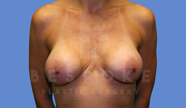 Breast Revision Surgery Gallery - Patient 4815683 - Image 6