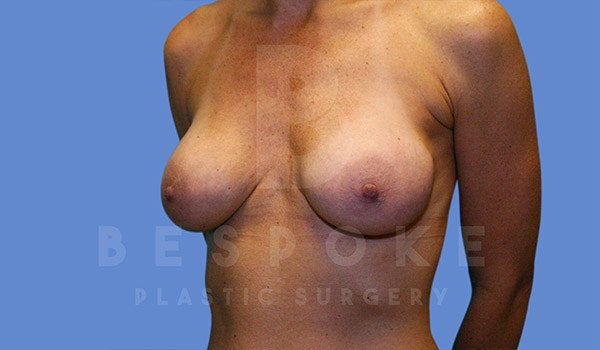 Breast Revision Surgery Gallery - Patient 4815683 - Image 3