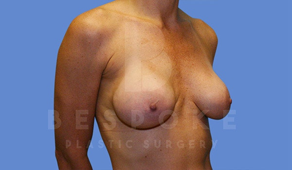 Breast Revision Surgery Gallery - Patient 4815683 - Image 5