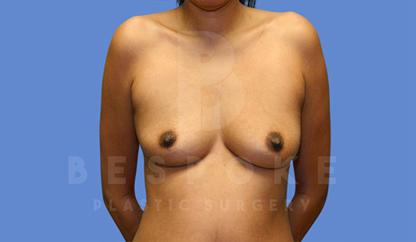Breast Augmentation Gallery - Patient 4815687 - Image 16