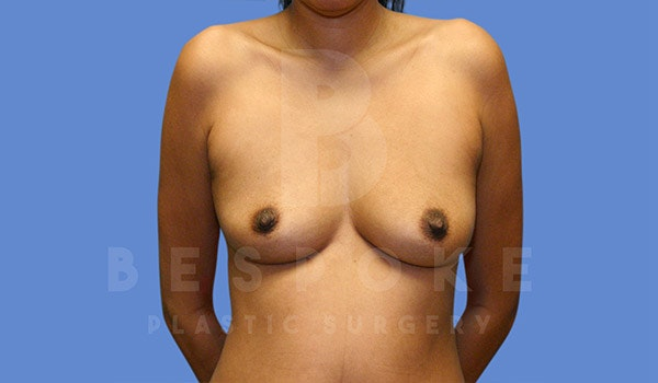 Breast Augmentation Gallery - Patient 4815687 - Image 1