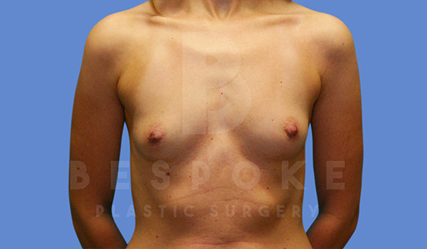 Breast Augmentation Gallery - Patient 4815688 - Image 17