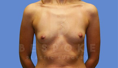 Breast Augmentation Gallery - Patient 4815688 - Image 1