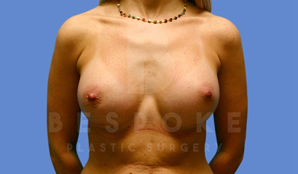 Breast Augmentation Gallery - Patient 4815688 - Image 2